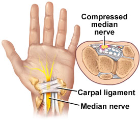 carpal tunnel steroid injection video